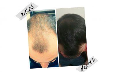 Com o kit Max Efetive Hair tratamento para Calvície, o resultado é garantido em até 90 dias de uso ! 😍